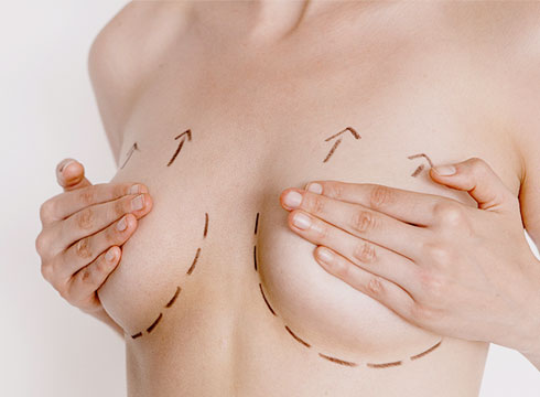 img-breast-lift