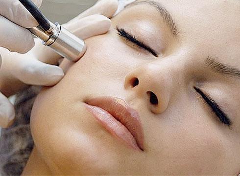 img-face-dermabrasion