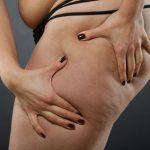 Cellulite - bad skin condition