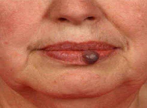Vascular Lesions NdYAG