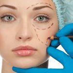plastic surgery Detroit