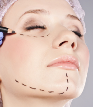 Cosmetic botox injection in the female face.