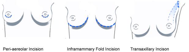 breast implant birmingham west bloomfield hills