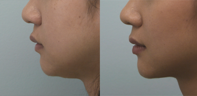 chin-liposuction