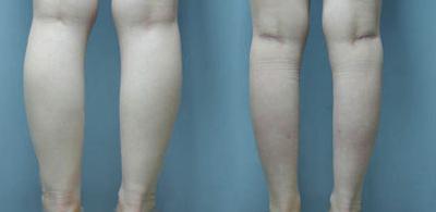 leg-liposuction