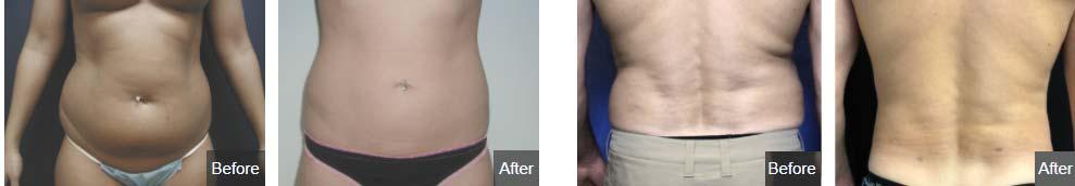 liposuction west bloomfield