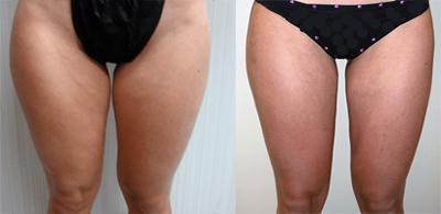 thigh-liposuction