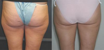 butt-liposuction