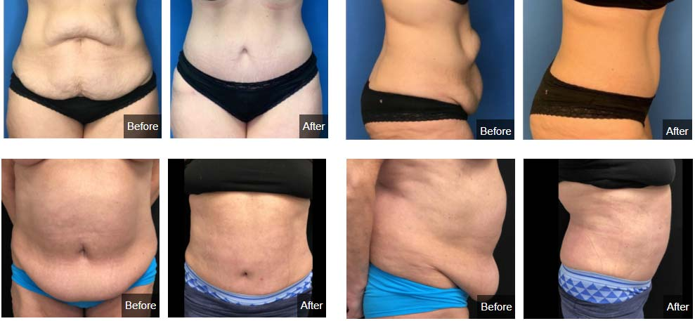 tummy tuck west bloomfield