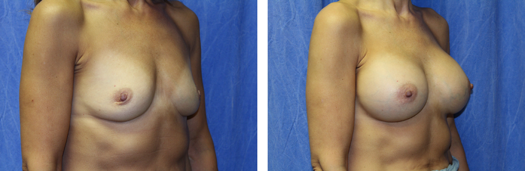 breast augmentation birmingham mi