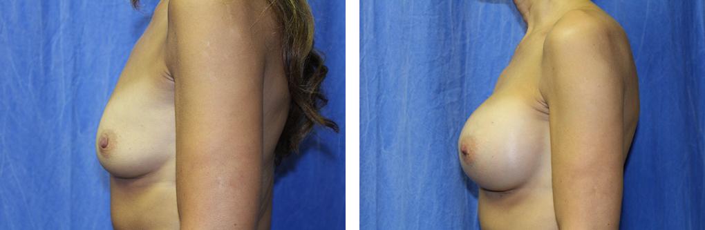 breast augmentation birmingham mi