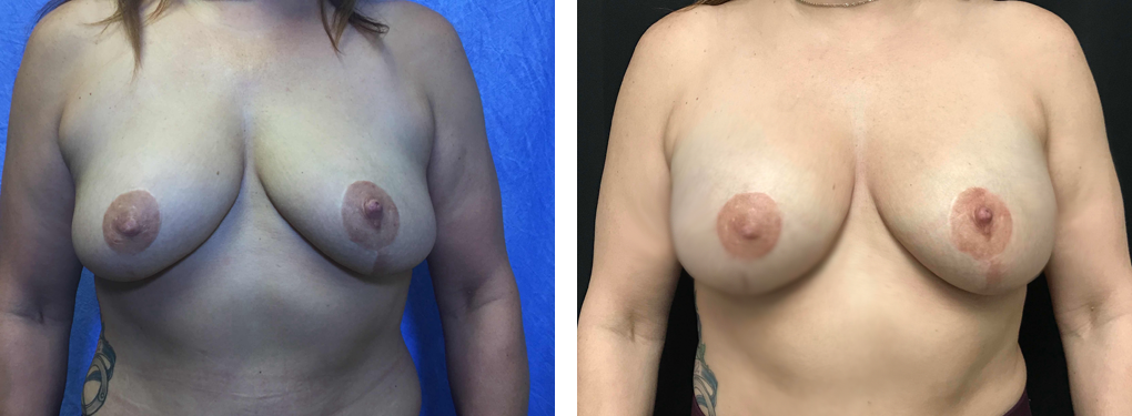 breast implants birmingham mi