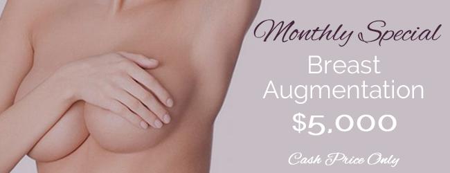 $5000 breast implants