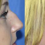 nose job surgery detroit