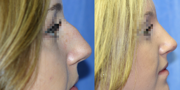 nose job surgery detroit