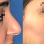 nose job surgery troy mi