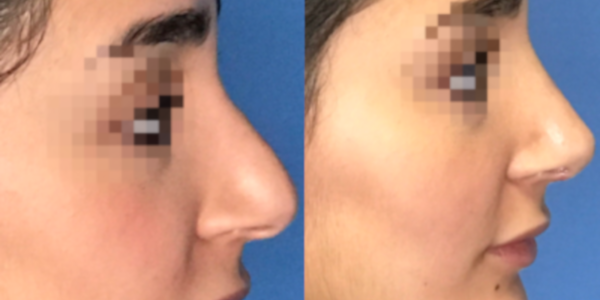 nose job surgery troy mi