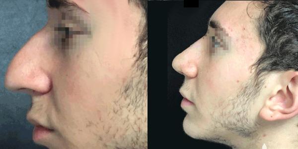 nose job surgery