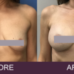 breast implants detroit