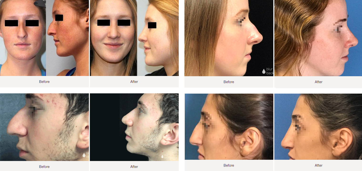 rhinoplasty birmingham, mi before-after