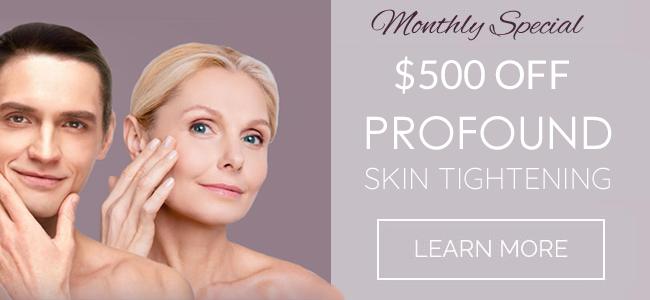 Profound skin tightening