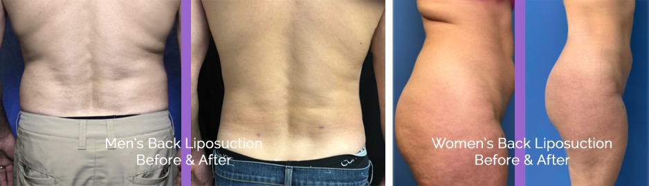 back liposuction macomb county area