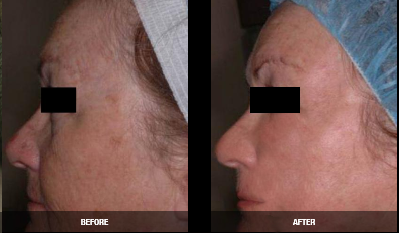 laser wrinkle reduction
