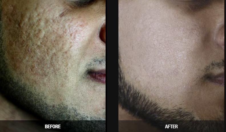 scar reduction birmingham mi